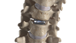 Freedom Cervical Disc