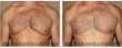 #Gynecomastia Before/After