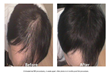 Scalp PRP Before & After