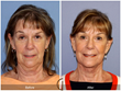Facelift Neck lift cosmetic surgery botox filler