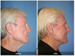 Male Neck Lift Facelift Local Anesthesia Eyelid Surgery Blepharoplasty