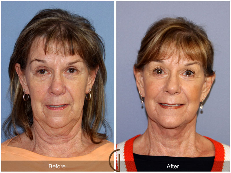 Best facial surgeon images 743