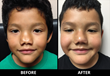 Young Patient Receives Reconstructive Rhinoplasty from California Plastic Surgeon Dr. Rami Batniji, Pro Bono
