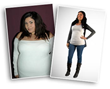 Article on Weight Loss Demonstrates the Power of Bariatric Surgery, Says Beverly Hills Physicians