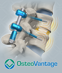 OsteoVantage's INDOS™ spinal instrumentation technology.