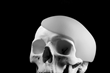 SU-POR Implants are used for craniofacial reconstruction and augmentation