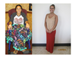 Mauryah - Before and After Treatment at Sponaugle Wellness Institute