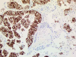 ALK mAB IHC staining of NSCLC Tissue