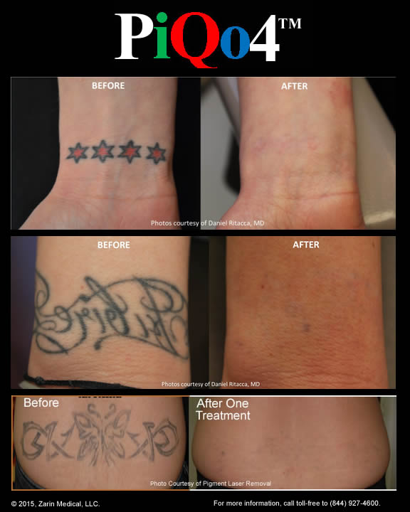 Tattoo Removal with Less Pain, 40% Fewer Treatments and Clearance of ...