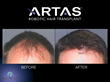 Before & After results for an ARTAS Robotic-assisted hair transplant procedure patient.