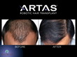 ARTAS patient before-and-after.