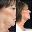 Before and after results of a patient who received Kybella injections for submental fat, also known as a double chin or chin fat.
