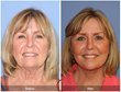 Facial Plastic Surgery Results from Board Certified Facelift Specialist, Dr. Kevin Sadati Neck Lift Newport Beach Orange County OC LA Beverly Hills Laguna Hills Costa Mesa Fachion Island Corona del Mar Cosmetic Surgery