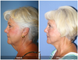 Lower Facelift and Neck Lift Surgery by Dr. Kevin Sadati, Newport Beach Top Cosmetic Surgeon Orange County Plastic Surgery Turkey Neck Heavy Neck Neck Liposuction Neck Surgery Anti-aging