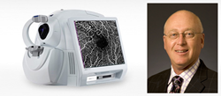 Mattax Neu Prater Eye Center First to Bring Retinal OCT Angiography to...