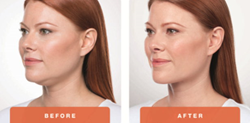 Kybella female patient before and after treatment picture