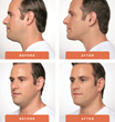 Kybella Treatment Male Before & Afters