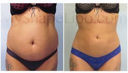 trevor schmidt pa-c, abdominal liposuction, liposuction, smart lipo