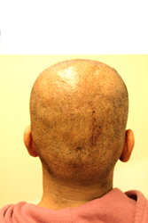 overharvested head donor from poor FUE hair transplant practices