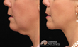 Loomis Plastic Surgery Mini Facelift (not a guarantee of results)