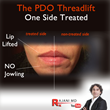 Results with The PDO Thread Lift