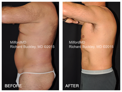 High definition laser body sculpting by Dr. Richard E. Buckley at MilfordMD.