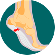 NYDNRehab Begins Use of Elastography to Diagnose Plantar Fasciitis from March