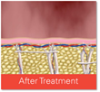 Cellfina - After Treatment
