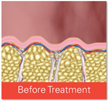 Cellfina - Before Treatment