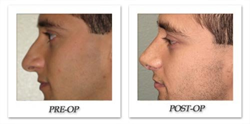 Article on One Man's Rhinoplasty Sheds Light on the Growing  Popularity...