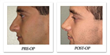 Article on One Man's Rhinoplasty Sheds Light on the Growing Popularity of Procedures for Men, says Beverly Hills Physicians.
