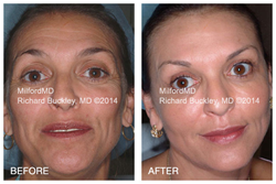 "Before and after photo of real MilfordMD cosmetic patient - six years post non-invasive ""liquid"" facelift performed by Dr. Richard E. Buckley at MilfordMD Cosmetic Dermatology Surgery & Laser Center in Milford, PA."