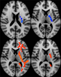 RSNA: Imaging Predicts Long-Term Effects in Veterans with Brain Injury