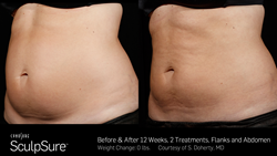 Before & After SculpSure Treatment