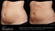 Latest Non-Surgical Fat Reduction Technology Comes to Atlanta Area
