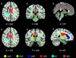 RSNA: Insomnia Linked to Damage in Brain Communication Networks