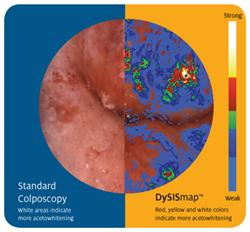 Standard Colposcopy versus DySISmap
