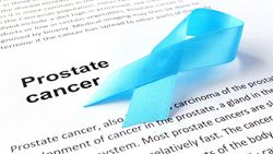 Prostate Cancer Detection; Prostate Cancer; Prostate Cancer Tests;