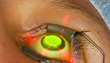 CLEI Center for Keratoconus-New Keratoconus Treatment Recently Approved