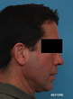 Aesthetic changes following sleep apnea surgery, before