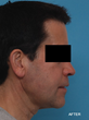 Aesthetic changes following sleep apnea surgery, after