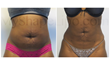 'Is Liposuction Really Permanent?': MyShape Lipo Patient Interviewed One Year After Her Abdominal Lipo with Brazilian Butt Lift
