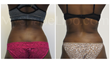 liposuction, abdominal liposuction, smart lipo, trevor schmidt pa-c, fat transfer to butt, brazilian butt lift
