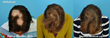 PRP Hair Regrowth - Alopecia Areata