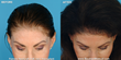 Female NeoGraft FUE Hair Transplant Patient