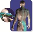 DRG Stimulation Model