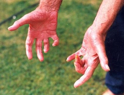 Patient with contracted fingers