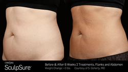 sculpsure for fat removal -  before and after