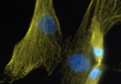 Human fibroblast (skin cells) undergoing cell division in culture in the lab of Tanja Dominko.