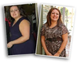 Recent Bariatric Surgery Article Highlights Weight Loss Realities, Notes Beverly Hills Physicians